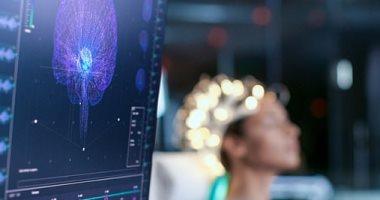 علماء يحذرون: الشرائح الإلكترونية بالمخ يمكن اختراقها وقراءة أفكار الشخص