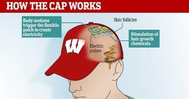 ابتكار قبعة بشريحة مدمجة ترسل نبضات كهربائية لعلاج صلع الرجال