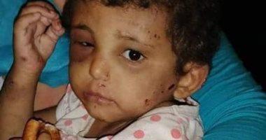 تجديد حبس المتهمة بالتسول باستخدام طفلة وتعذيبها فى شبرا الخيمة