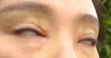 امرأة صينية لا تستطيع غلق عينيها حتى أثناء النوم بسبب عملية تجميل فاشلة