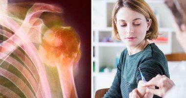 اطمن على نفسك.. اختبار نخاع العظام يكشف عن أمراض الدم والسرطان