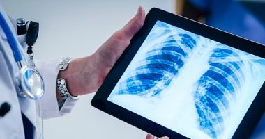 جوجل تلغى نشر أكثر من 100 ألف أشعة إكس عبر الإنترنت.. اعرف السبب -