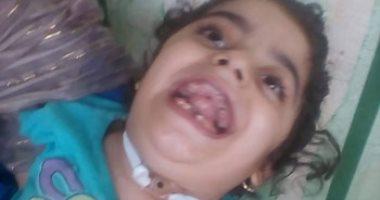 صور.. مأساة طفلة بالشرقية أصيبت بشلل بسبب إهمال طبى.. والدتها تتمنى علاجها