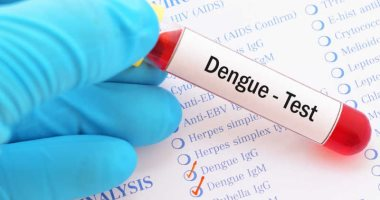Dengue D2 strain causes serious symptoms.. Know the signs of infection