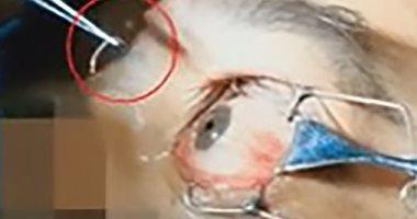 فيديو.. استخراج 3 ديدان طفيلية طولها 2 سم من عين رجل صينى.. والسبب كلب