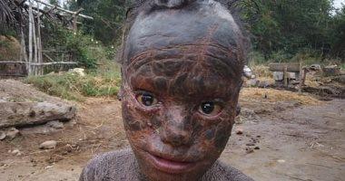 الثعبان البشرى.. طفل هندى يصاب بمرض جلدى نادر يغطى جسمه بجلود سميكة