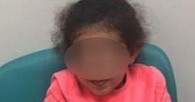 الإهمال ينهى طفولة عايدة بكسر عظامها فى نادى سبورتنج.. صور