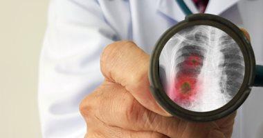 السعودية نيوز |                                              تسجيل 327 إصابة جديدة بفيروس كورونا في السعودية