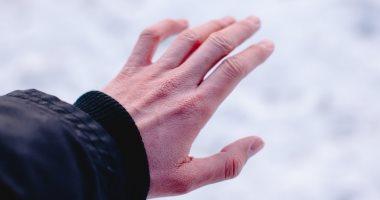 لسعة البرد أو عضة الصقيع.. مرض يصيب أطرافك فى الشتاء