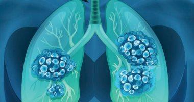 أطباء بهونج كونج: المتعافون من فيروس كورونا يعانون من نقص وظائف الرئة بنسبة 30%