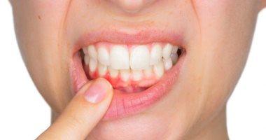 التهاب اللثة له أسباب عديدة منها سوء نظافة الفم والتدخين