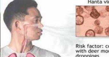 "economictimes: فيروس صينى جديد يدعى ""هانتا"" يتسبب فى وفاة شخص"