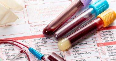 ارتفاع بروتين D-dimer فى الدم يرتبط بمضاعفات سيئة لمرضى كورونا