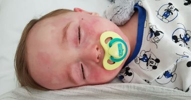 دراسة إيطالية: كورونا يحفز طفرة في اضطرابات الدم الخطيرة لدى الأطفال