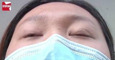 """صينية لا تستطيع النوم إلا بغلق عينيها بـ""""شريط لاصق"""" بعد جراحة تجميلية فاشلة"""