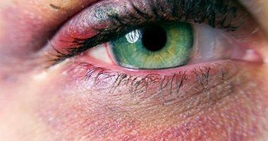 تعرف على طرق علاج كدمات العين أبرزها الكمادات والتدليك