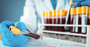 دراسة أمريكية: أصحاب فصيلة الدم O أقل عرضة للإصابة بكورونا