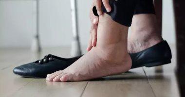 كيف يختار  مريض السكر الحذاء بعناية للحفاظ على صحة القدمين؟