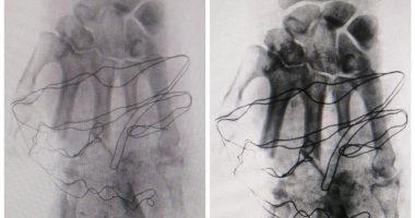 إجراء جراحة لعلاج مواطن مصاب بتهتك فى اليد اليسرى بمستشفى أرمنت