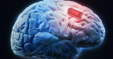 """شاهد روبوت شركة """"إيلون ماسك"""" المصمم لدمج شريحة الدماغ داخل المخ.. صور"""
