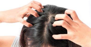 أهم 5 أطعمة تدعم صحة شعرك وتحميه من التلف