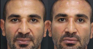 أحمد سعد يخضع لعملية نحت فى الوجه.. شوف الفرق قبل وبعد (صور)