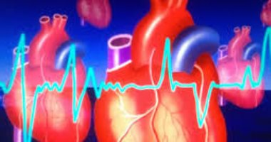 How does PCOS affect the risk of heart attack or stroke?