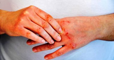 Learn about the symptoms of psoriasis on your skin, including a rash and silvery scales