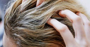 5 أسباب تجعل شعرك دهنى بشكل أسرع .. كثرة اللمس وقلة التصفيف الأبرز