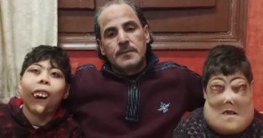 تليفزيون اليوم السابع يشارك فرحة طفلى المرض النادر بعد استجابة الوزراء لحالتهما