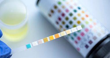 ما هو اختبار لوحة الدهون وما هى الأنواع التى يقيسها؟