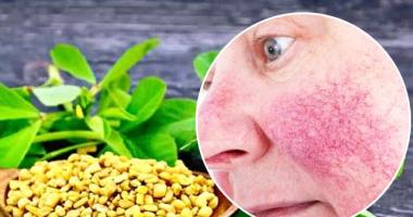 احمرار الوجه المزمن.. 5 علاجات طبيعية فعالة للوردية
