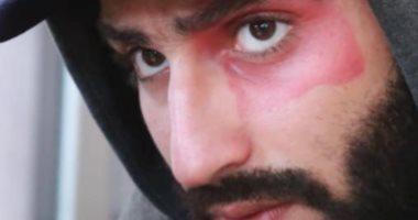 """محمد الشرنوبى يوضح سر العلامة على وجهه فى """"وكل ما نفترق"""": الناس فاكراها ضربة"""