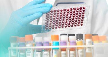 حالات تستدعى إجراء تحليل الميوجلوبين.. منها النوبة القلبية