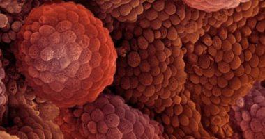 دراسة أمريكية تتوصل إلى بروتين داخل أجسامنا يحمى من سرطان البروستاتا