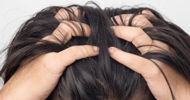 """نصائح للعناية بالشعر.. اعرفى أفضل الطرق لعلاج حكة فروة الرأس """"الكركديه الأبرز"""""""