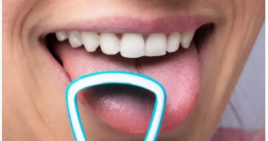 The tongue is a warning device for your body.. Know your health problems by its color