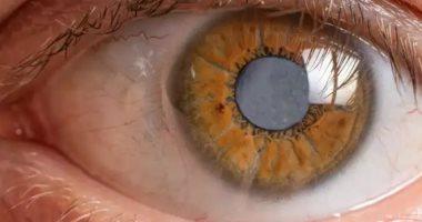 4 مشاكل فى العين بسبب ارتفاع مستويات السكر بالدم