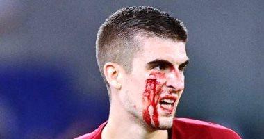 صورة إصابة مروعة لـ مانشيني نجم روما في الوجه خلال مباراة أودينيزى.. صور