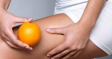 أسباب تزيد فرص ظهور السيلوليت في الجسم..أهمها عدم شرب الماء والملابس الضيقة