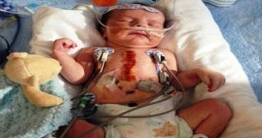 """بالصور.. 3 عمليات جراحية خطرة لإنقاذ طفل أمريكى مولود بـ""""نصف قلب"""""""