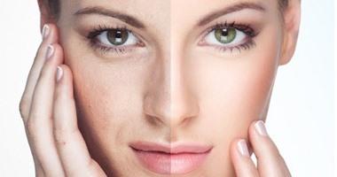تبييض الوجه والجسم