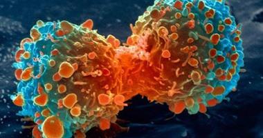 دراسة: طريقة علاج سرطان البروستاتا قد يؤثر على حياة المريض
