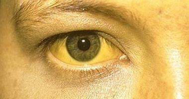 لون البول الداكن واصفرار العين والجلد من علامات إصابة الطفل بفيروس A اليوم السابع