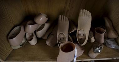 قارئة تطالب وزارة الصحة وأًهل الخير بتوفير أطراف صناعية لها بسبب قطع قدميها