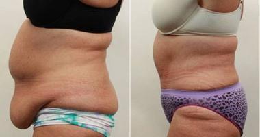 تراكم الدهون بمنطقة البطن بعد انقطاع الطمث السبب الأول للإصابة بالسرطان