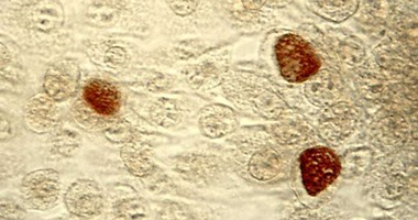 """اختبار جديد يكشف إصابتك ببكتيريا """"الكلاميديا"""" المنقولة جنسيا"""