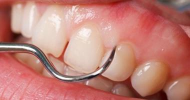 خراج الفم يسبب التهابات الجيوب الأنفية وتسمم الدم
