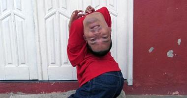 """بالصور.. برازيلى بـ""""رأس مقلوب"""" يرفض الإعاقة ويصبح محاسبًا ومحاضرًا"""