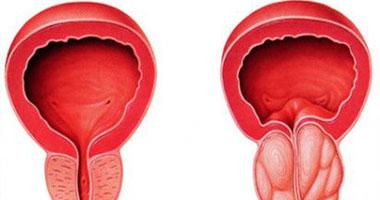 أعراض أمراض البروستاتا عند الرجال أهمها حرقان البول